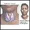 Hashimoto's disease (chronic thyroiditis)